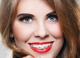 metal dental braces image