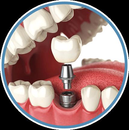 Affordable Dental Implants In San Antonio Tx Texas Dental